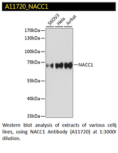 A11720 NACC1 Polyclonal Antibody