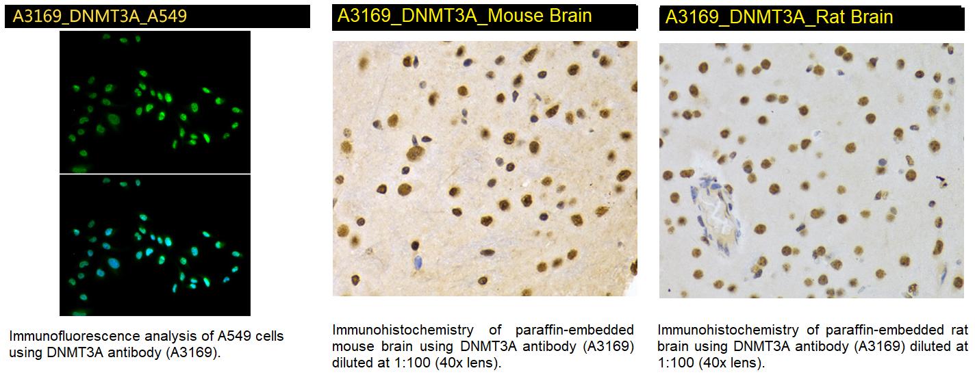 A3169 DNMTA3A Antibody