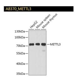 A8370_METTL3