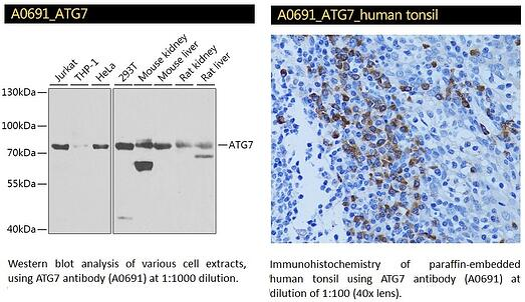 ATG7 Antibody