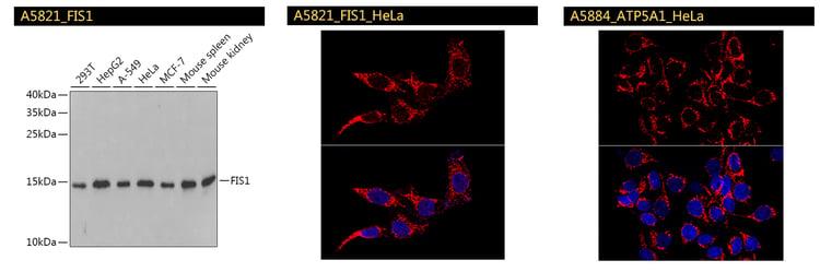 FIS1 ATP5A1