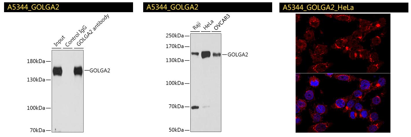 GOLGA2