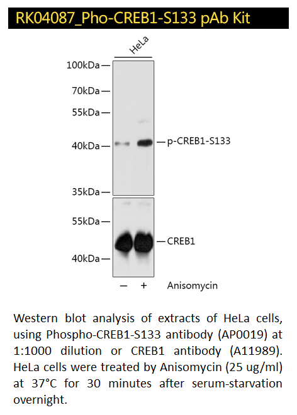 RK04087_Pho-CREB1-S133-pAb-duo