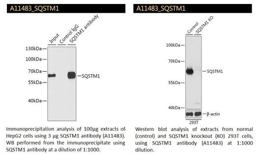 SQSTM1 Antibody