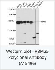 RBM25 Polyclonal Antibody