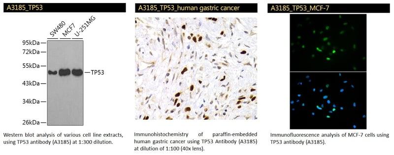 TP53 Polyclonal Antibody